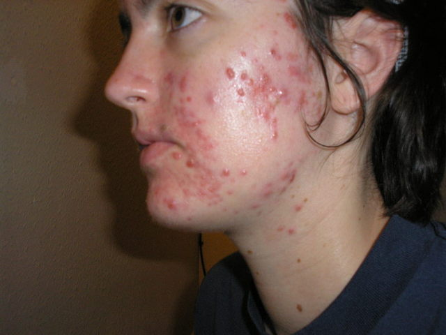 1 Month into Accutane