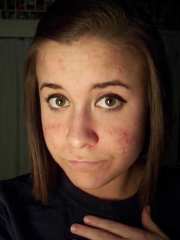 acne before 001.jpg