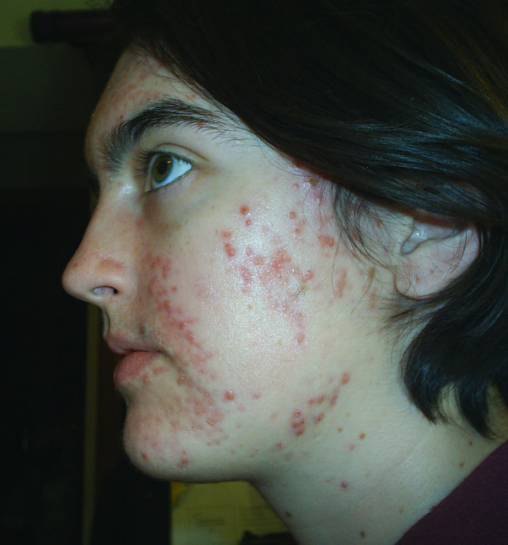 1 month, 20 days Into Accutane