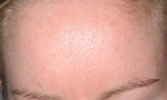 day 1 forehead