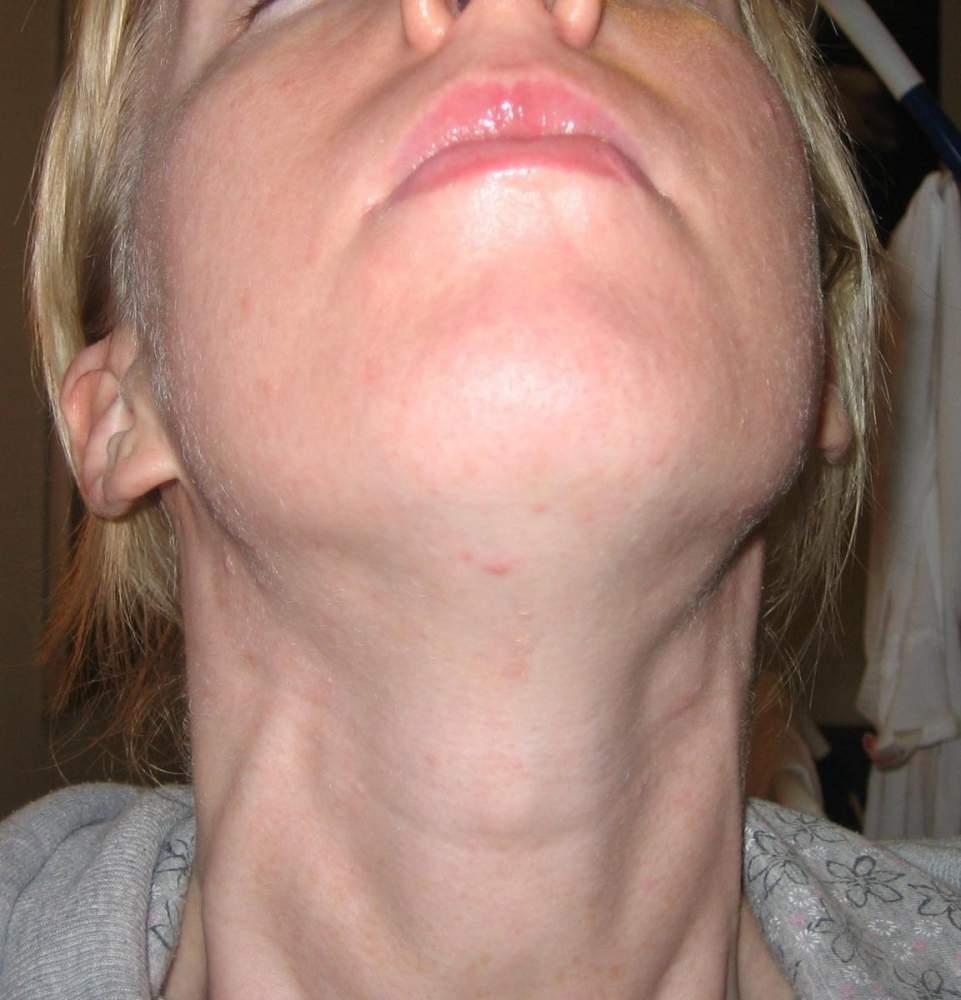 day 5 my neck/chin