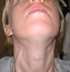 day 5 my neck/chin