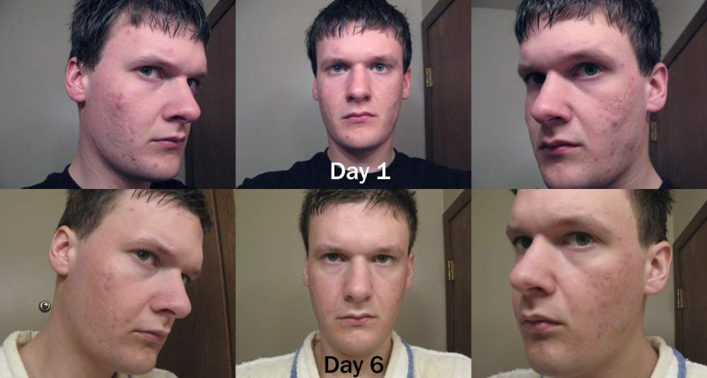 Day6.... compare to day 1