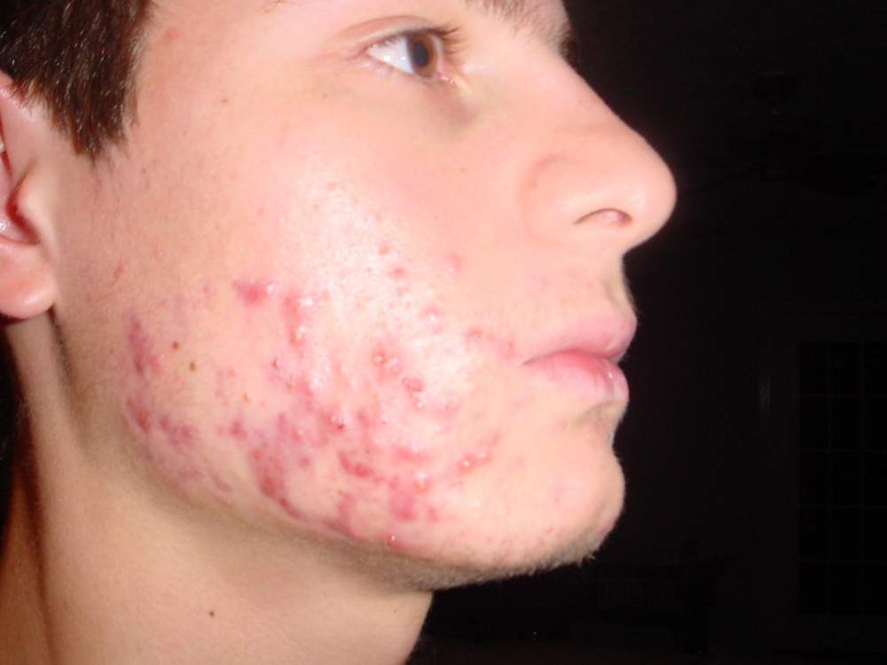 Just Starting Accutane