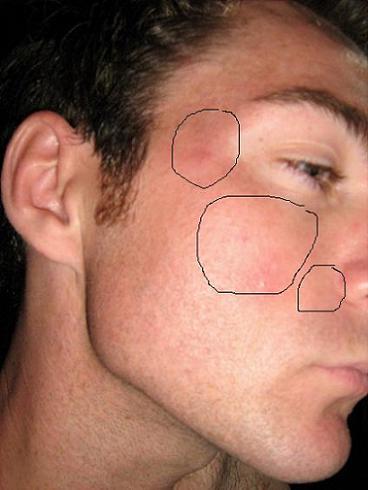 New pics.... Damn Spots, I hate Em!!!