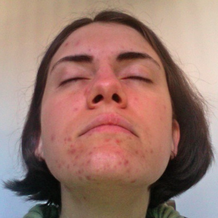 End of Week Five - Chin