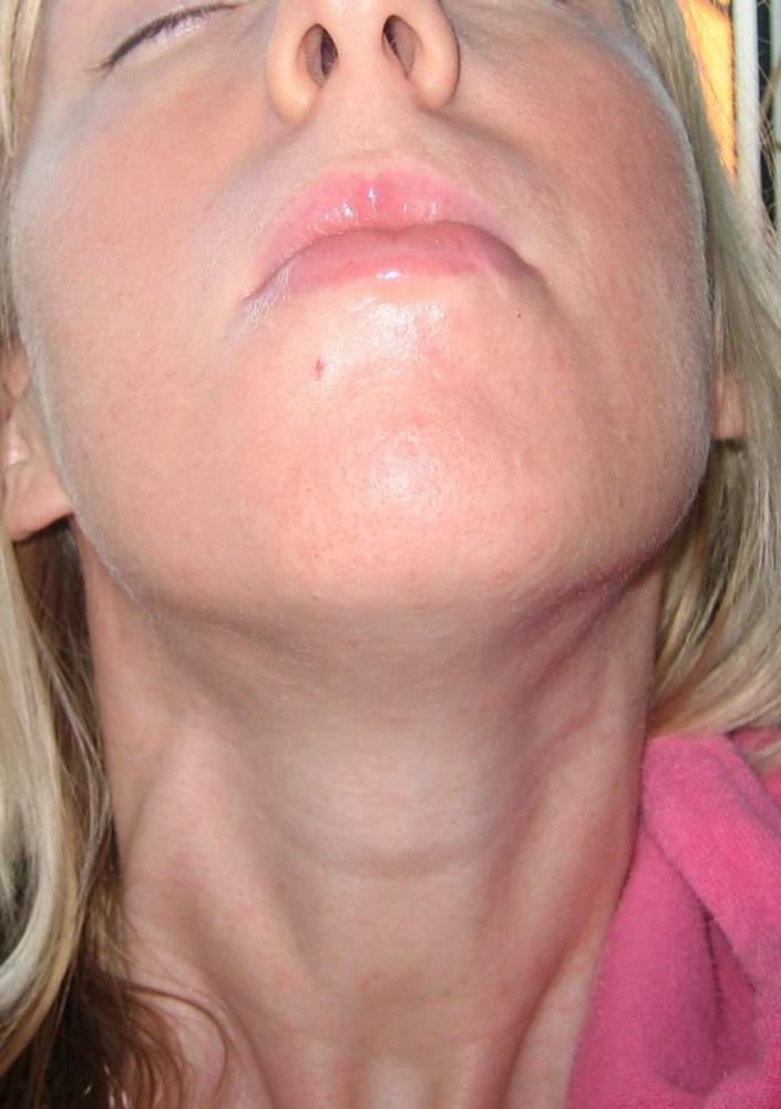 day 16 neck chin area