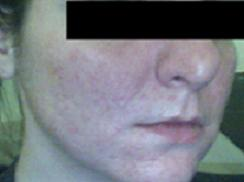 accutane progress (w/o make-up)
