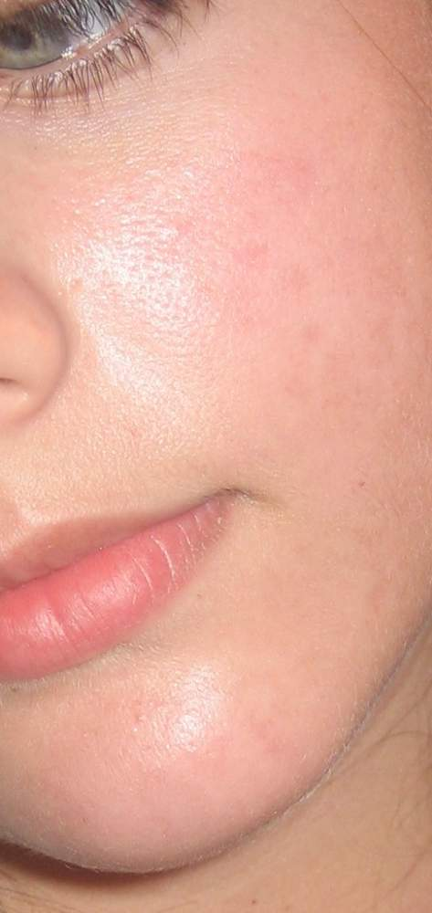 acne 002.jpg