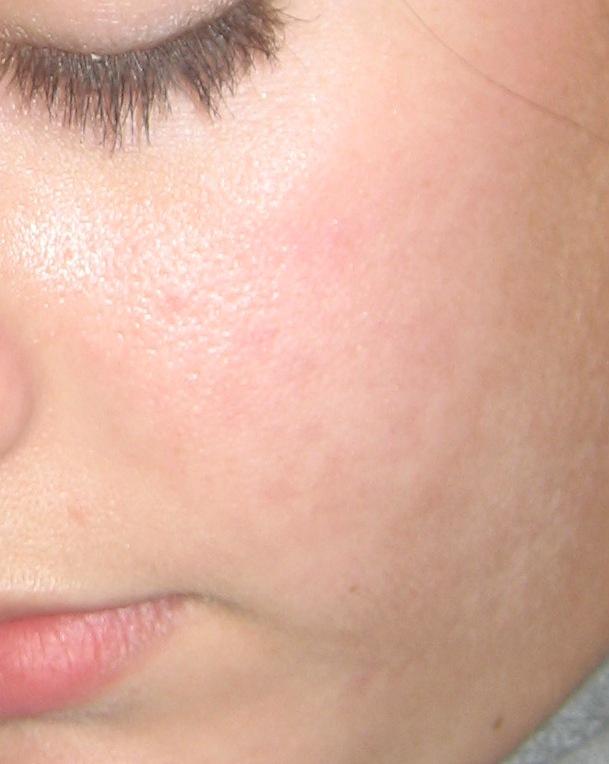 acne 001.jpg