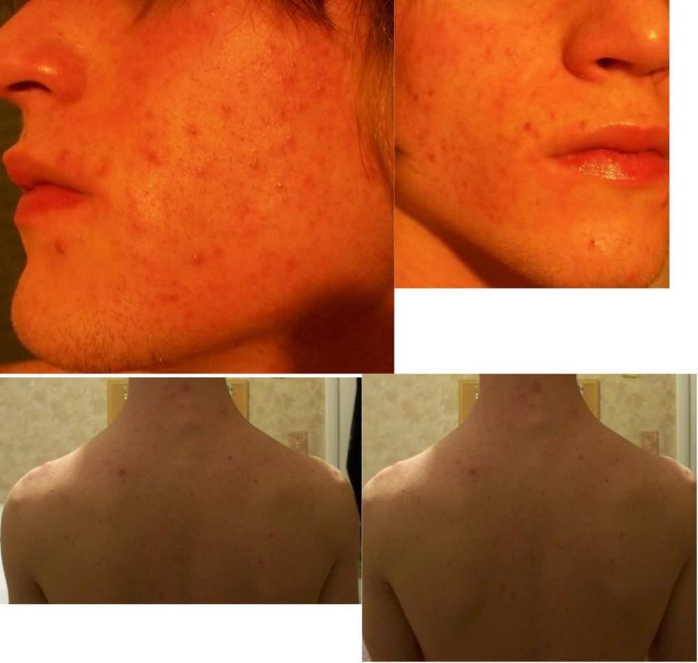 tj's acne.org reg log