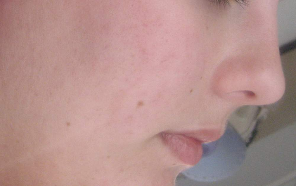 Hyperpigmentation or Scars?