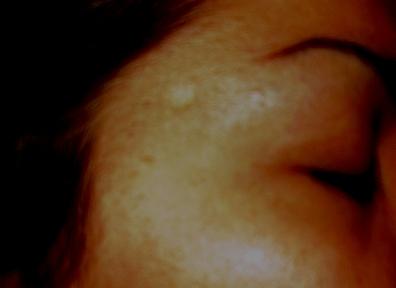 scar 003.jpg