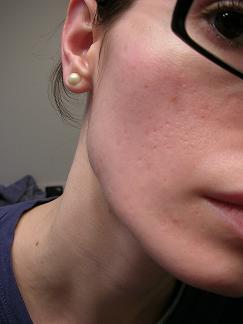 post accutane scars