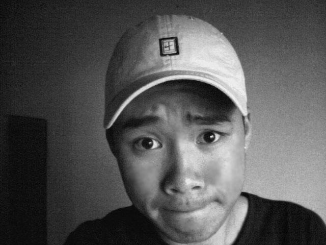 me before i had acne :(