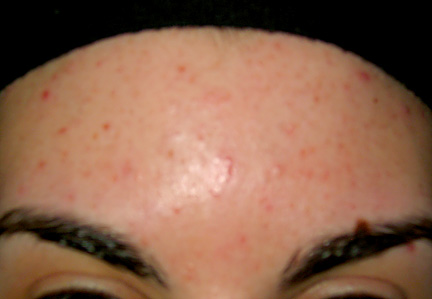 SkinBefore(Forehead).jpg