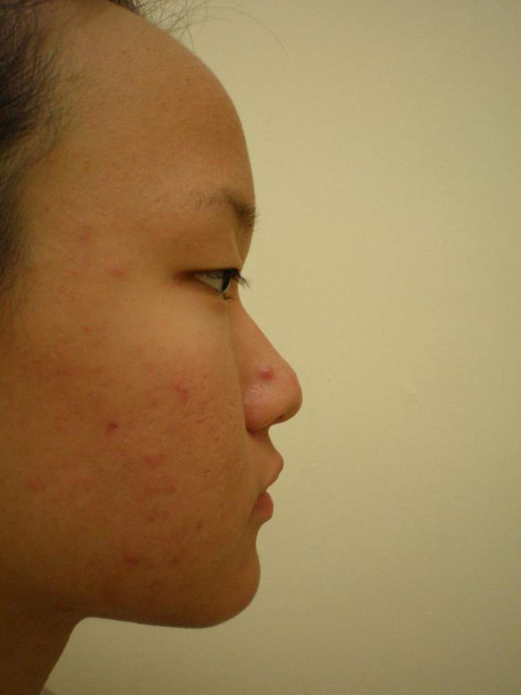 Right Side View before regimen