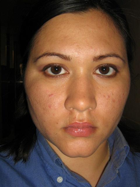My ugly Skin