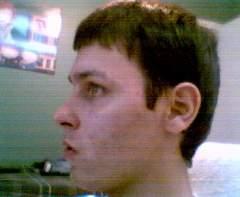 Steves acnes gone bad