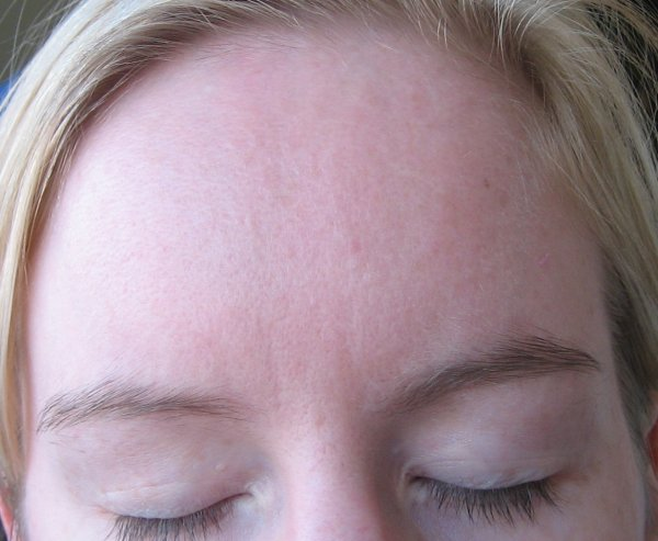 month 3 day 60 forehead clear!!