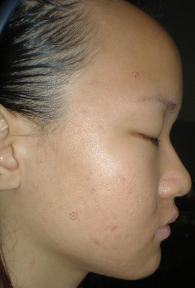 Right Side View 4 weeks - inflamed acne