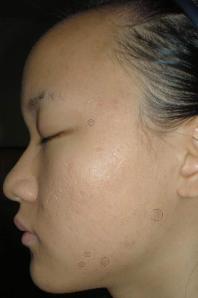 Left Side View 4 weeks - inflamed acne