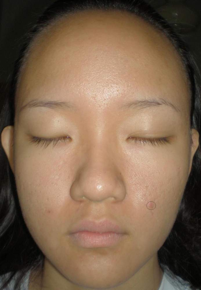 Front View 4 weeks - inflamed acne