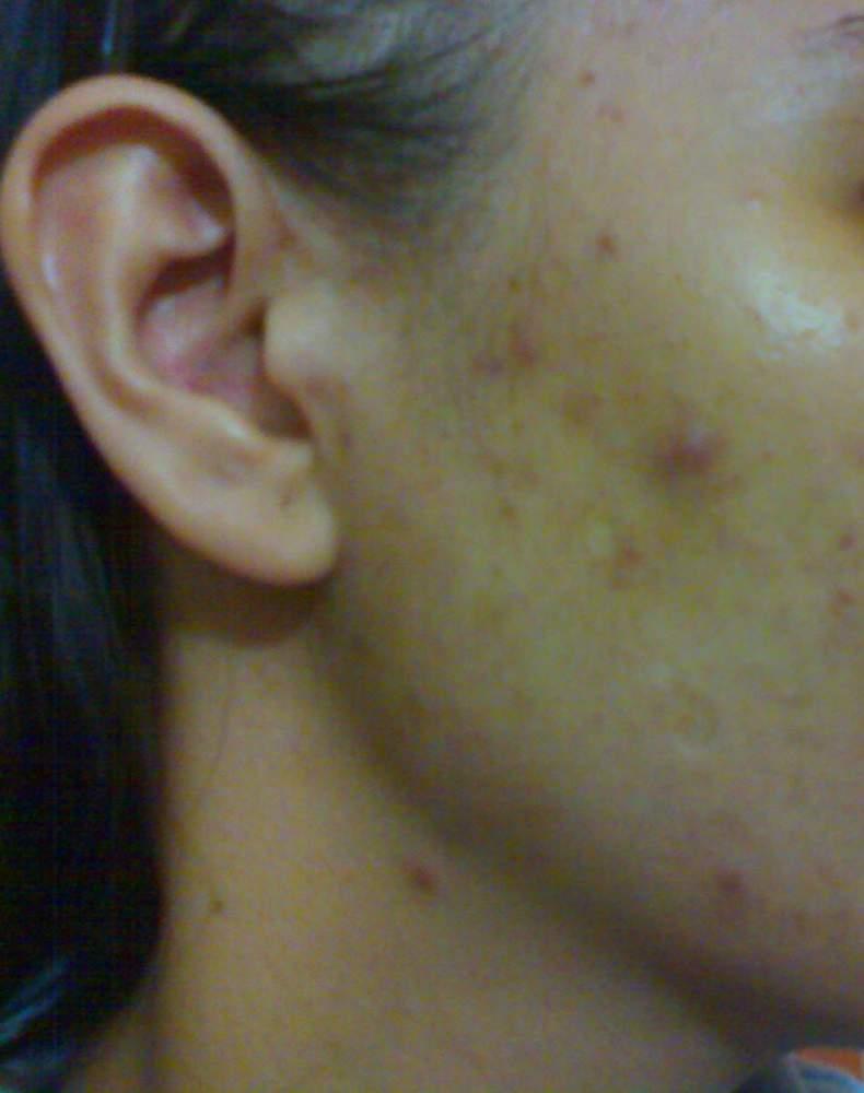 my acne face :(