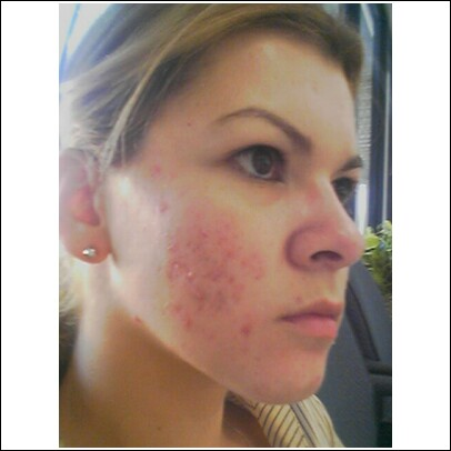 Day 1 on accutane