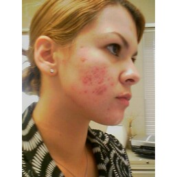 this was 3 weeks before accutane