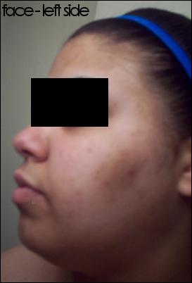 START: Face - Left Side