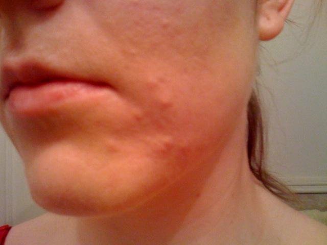 Bad skin, Day 35