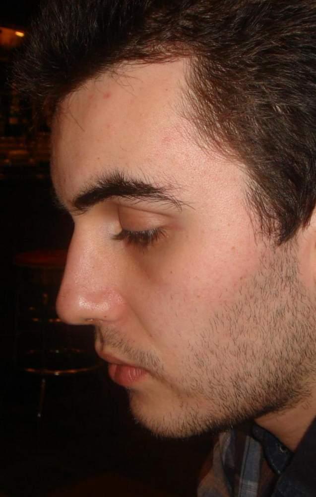 My skin after accutane.