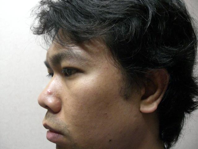 Big pores,scars,blackhead,whitehead,pimples