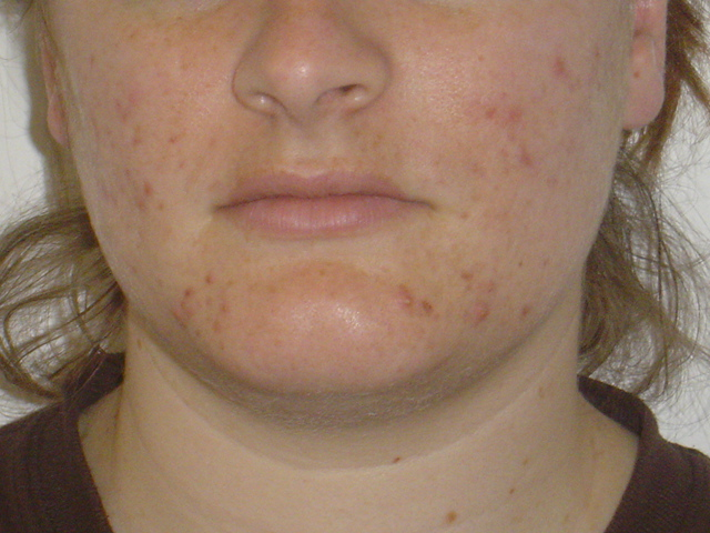 1 month before starting accutane- front