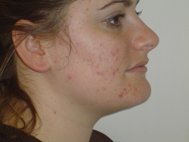 1 Month Before Accutane- Right