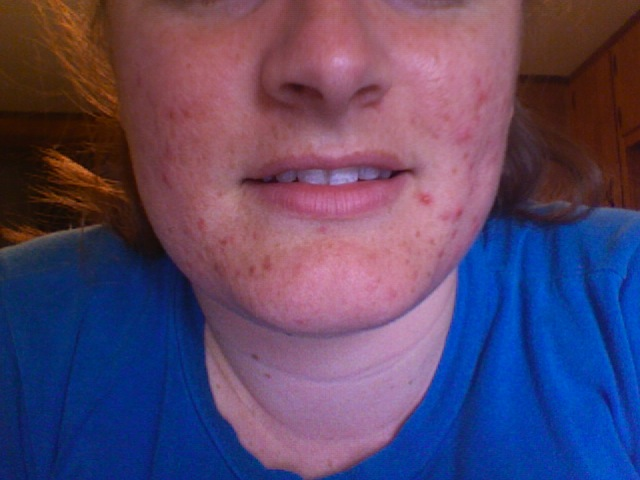 3 days before starting accutance 5/5/2008