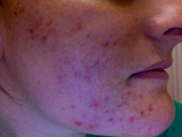 Day before Accutane - 5/8/2008
