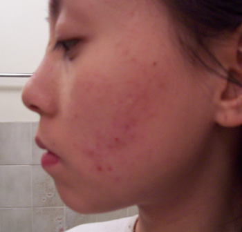 Accutane 2nd course - 3 weeks - with out make up