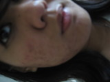 acne 003.jpg