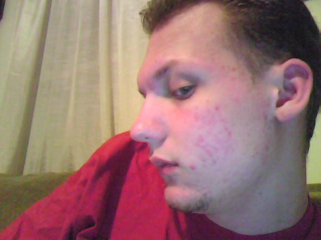 Another pic pre-accutane
