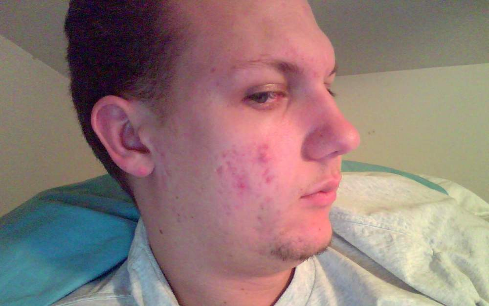 This is within the year. My acne has slowly been getting bet