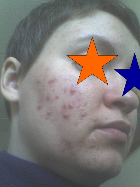 Pre-Accutane, left side.  3.24.3008