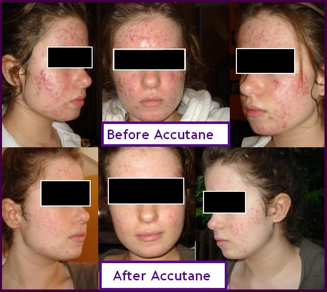 Before & After Accutane :)