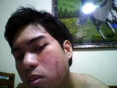 19-june-2008. My regimen using maxi-peel products. Right sid