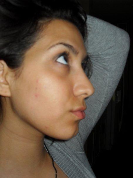 my face....blahhhhhhhhhhh