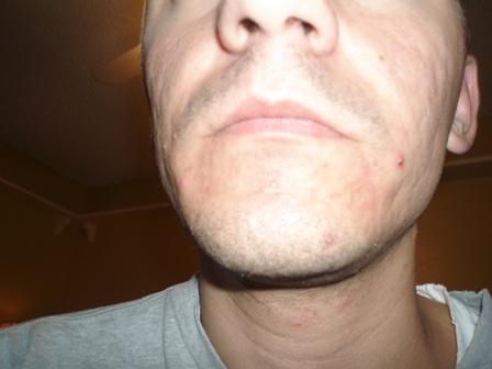 acne3.JPG