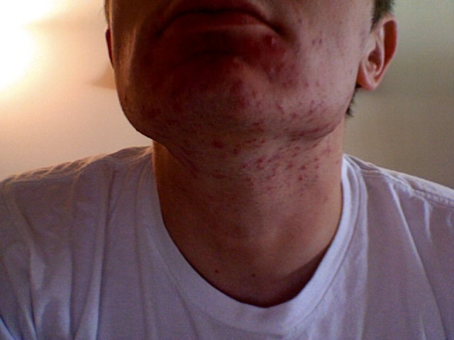 My neck, the worst its ever been after laser treatment
