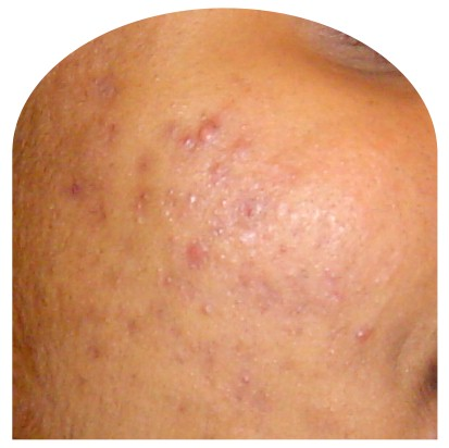 skin after bp 5