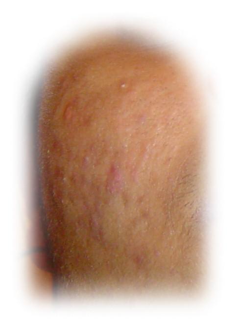 damaged blotchy skin ...red marks !